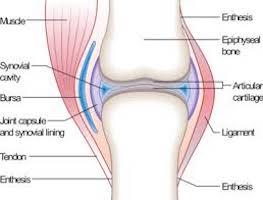 artroza displazică a șoldului